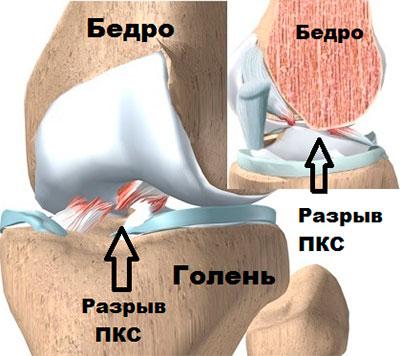 Крестообразная связка коленного сустава операция в краснодаре thumbnail